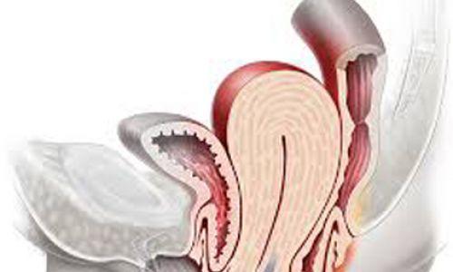 Pelvik Organ Sarkması (Prolapsusu)