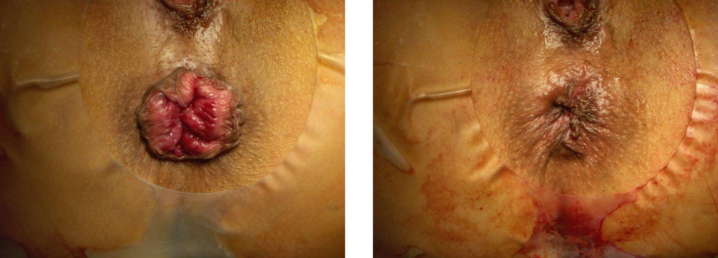 Evre 3 Hemoroidal hastalıkta THD yöntemi öncesi ve sonrası görünüm