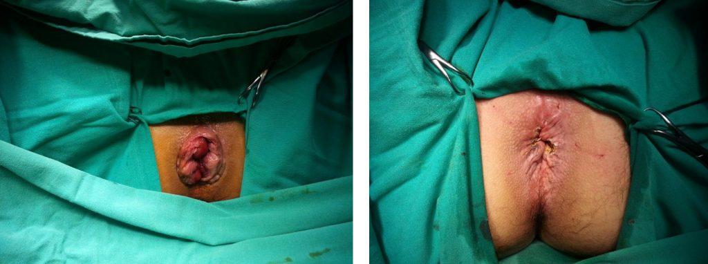 Hemoroid Klasik Ameliyat Tekniği