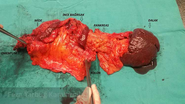 Siterodüksiyon amacıyla birden çok organ rezeksiyonu